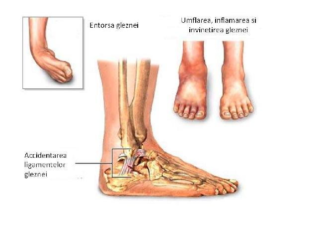 artrita simptomelor articulației genunchiului și cauzele tratamentului