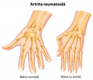 articulația inflamației degetelor mari)