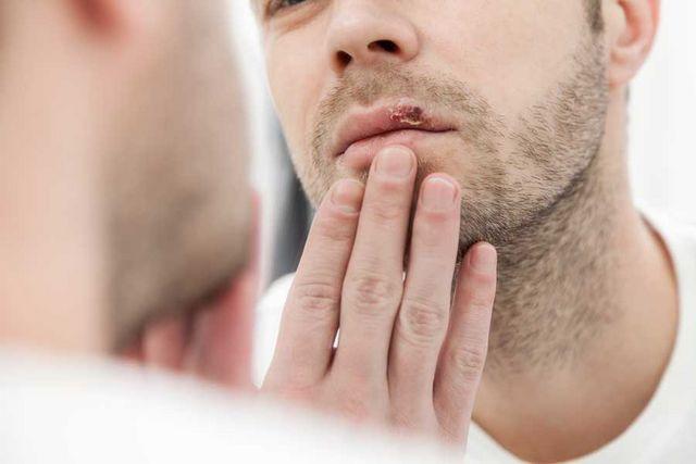 umflarea durerii genului febril