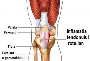 conduce inflamația genunchiului)