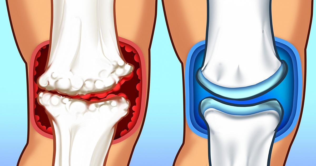 scapa de durerea articulara gradul de boală articulară