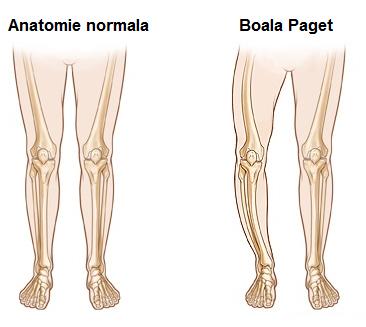 deformarea bolilor osoase și articulare