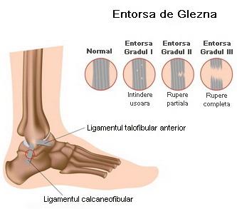 deteriorarea ligamentului articulației gleznei)