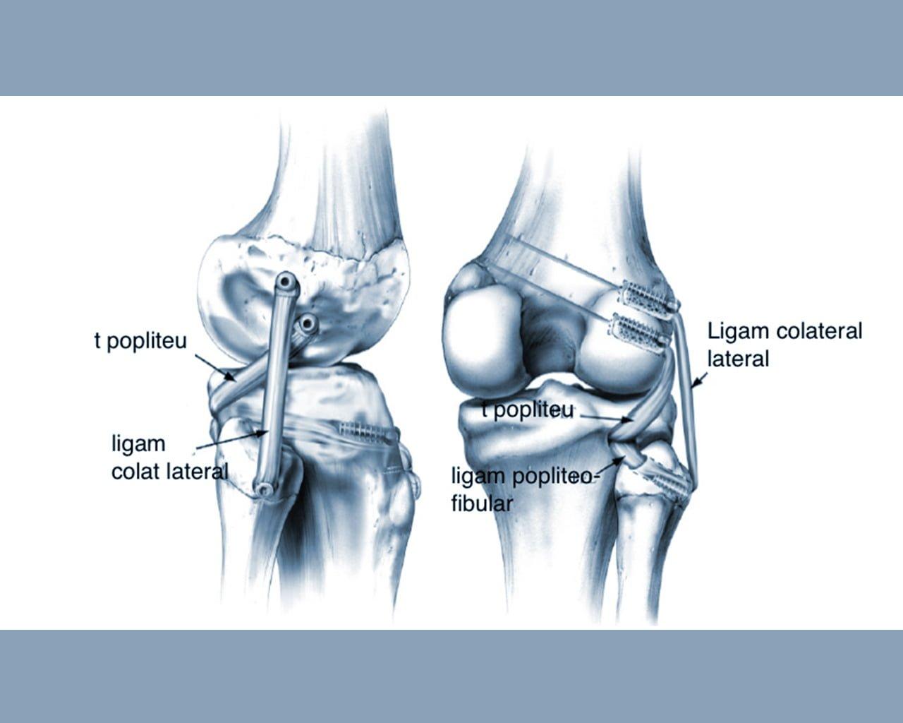 reparația artroscopică a genunchiului)