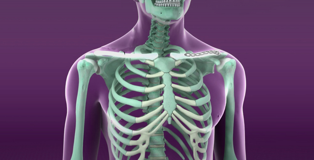 articulațiile de pe partea stângă a corpului doare tratamentul displaziei congenitale de șold