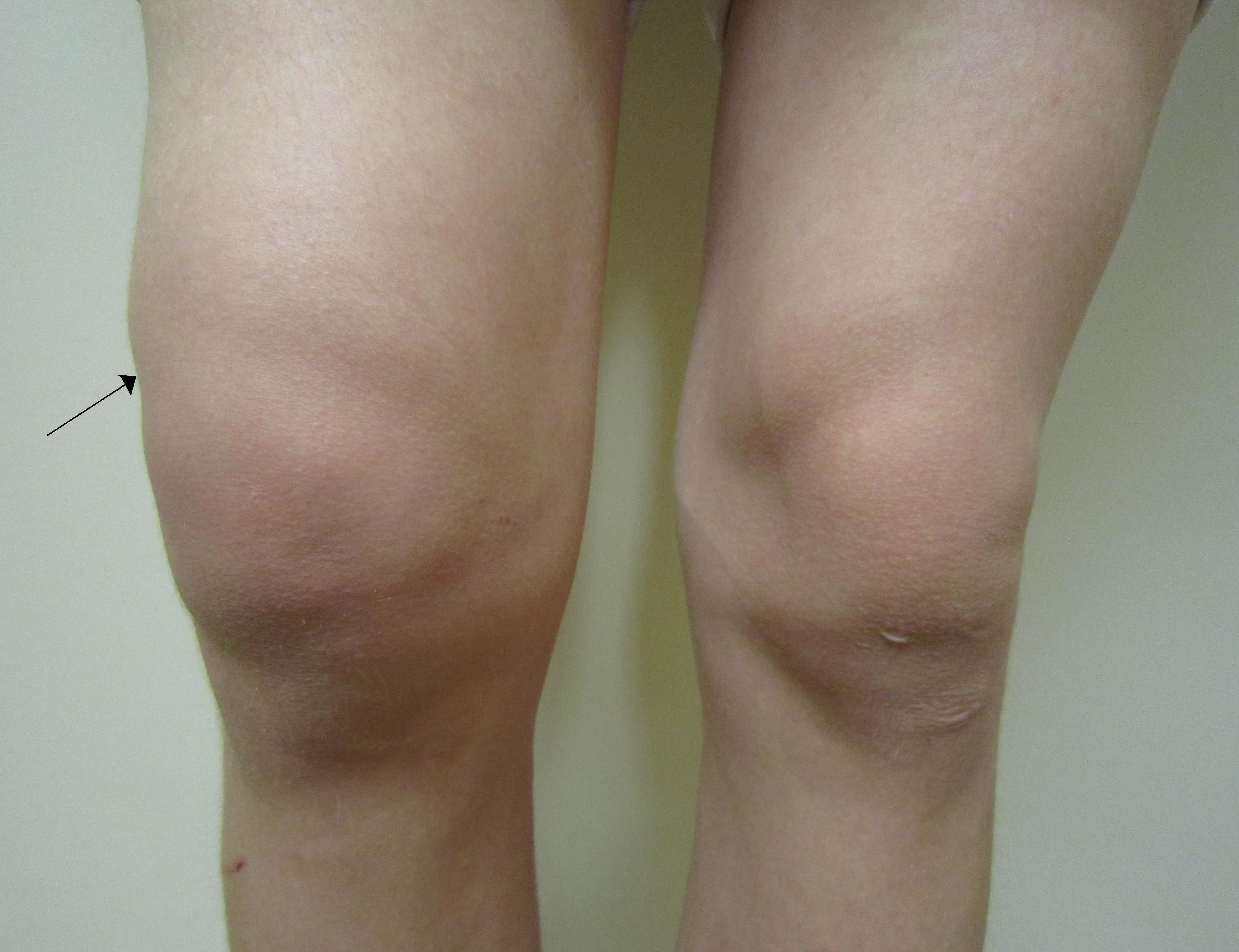 sari leziuni ale genunchiului)