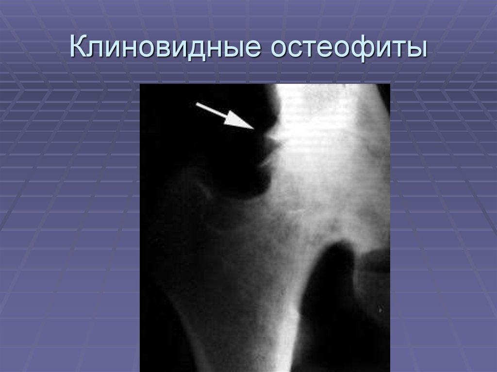 articulația genunchiului xa afectează ce este)