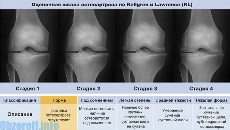 artroză articulară acută