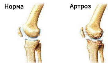 artroza restaurării cartilajului genunchiului)