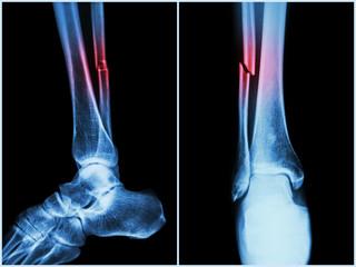 Particularitățile tratamentului fracturilor la vârstnici | Arcadia Spitale si Centre Medicale
