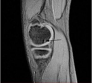 disecția osteochondrozei articulației șoldului