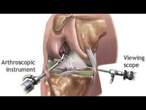 HLS Forum artroza de - Artroza novice a articulațiilor șoldului