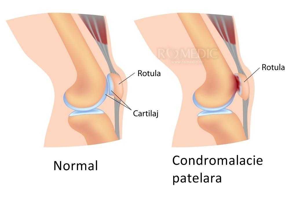 durere la genunchi partea interioară
