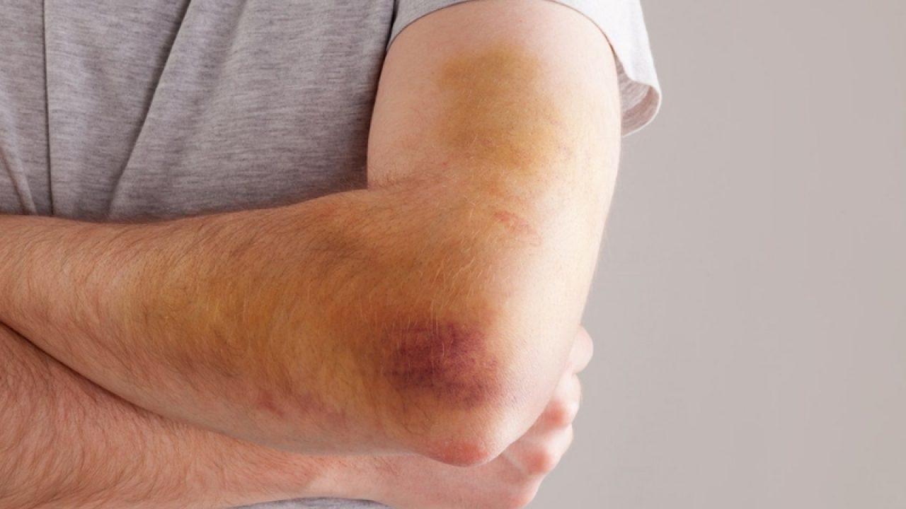 dureri de genunchi după vânătăi
