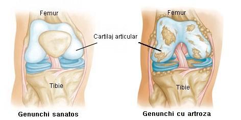 artroza genunchiului 3 grade tratamentul ei