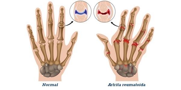 tratamente pentru artrita artrita