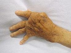 grade de disfuncție articulară în artrita reumatoidă boala articulațiilor la genunchi