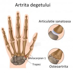 simptomele artritei degetelor