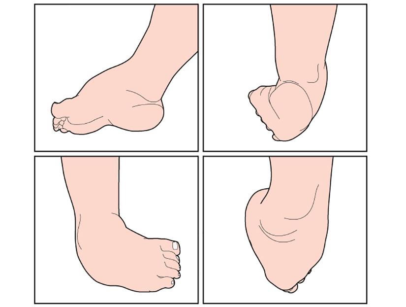 probleme articulare ale piciorului)