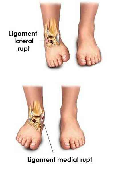tratamentul rupturii parțiale a ligamentelor gleznei