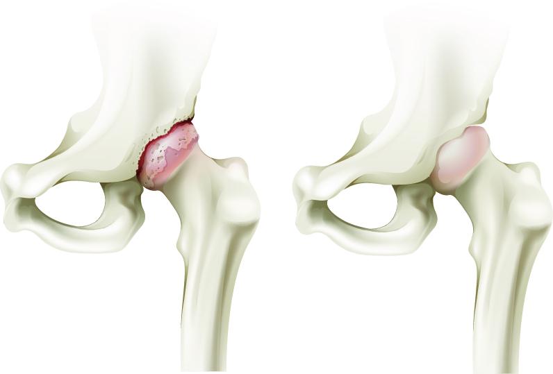 examen pentru artrita articulației șoldului