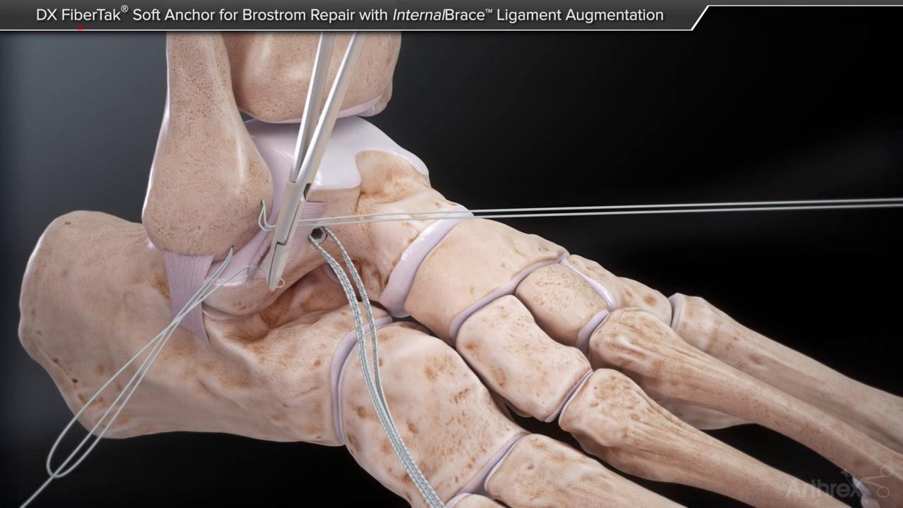 tratamentul distorsiunii ligamentului gleznei