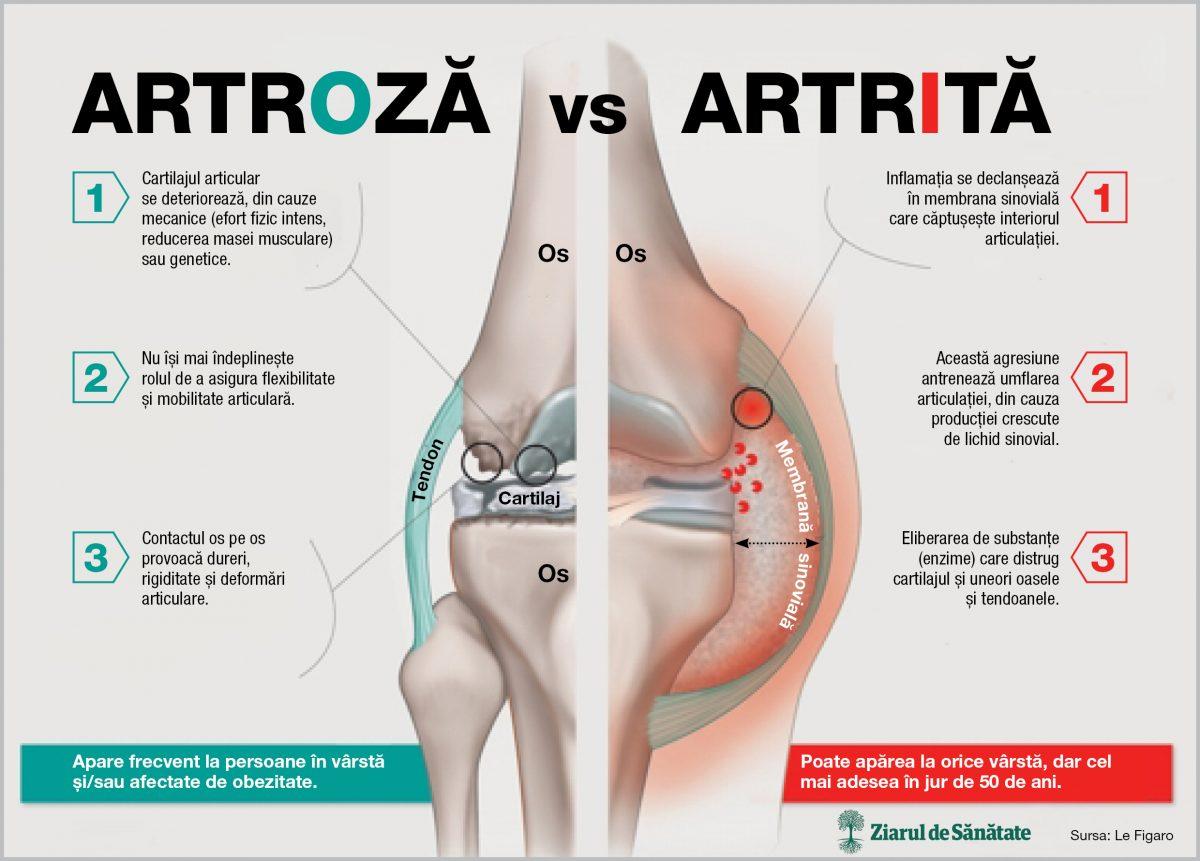 cauza artrozei articulațiilor