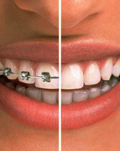 recenzii ale aparatului bucal dentar pentru tratamentul articular)