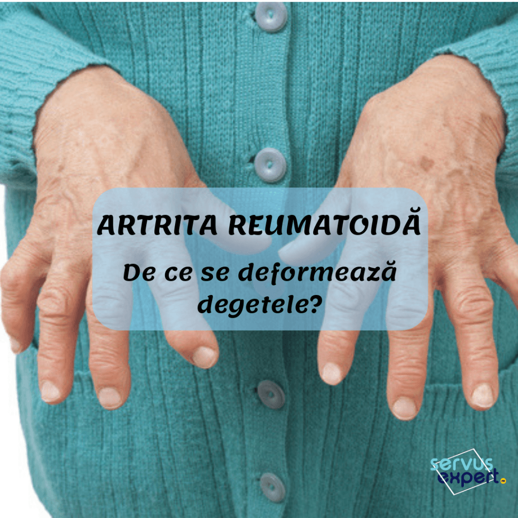 deformând artroza articulațiilor degetelor
