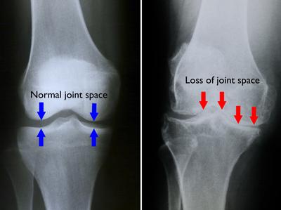 artroza gradului 2 al articulației genunchiului