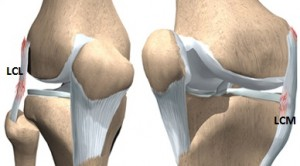cum să tratezi o ruptură a ligamentului genunchiului