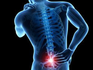 Artroză Pastile de artroză