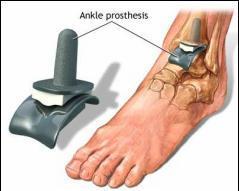 opriți artroza articulației gleznei)