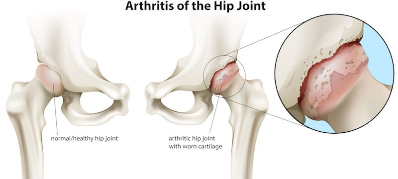 Artroza inflamației și durerii articulației șoldului. Durere în articulații mari și în spate