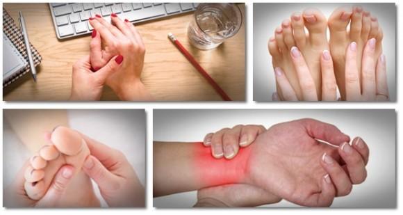 mâini cu artrita guta