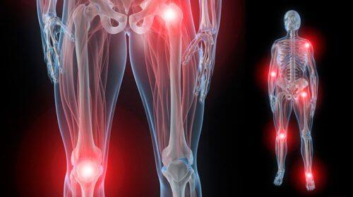 scârțâind dureri la nivelul articulațiilor șoldului osteochondroza medicament relaxant muscular