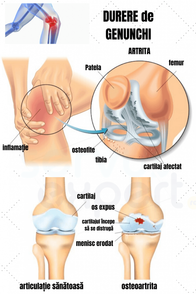 umflarea în articulațiile genunchiului)