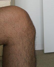 Boala Osgood-Schlatter - Boala Schlatter a genunchiului