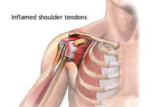 durere de tendon în articulația umărului)