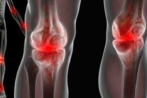 artrita alergică infecțioasă la șold)