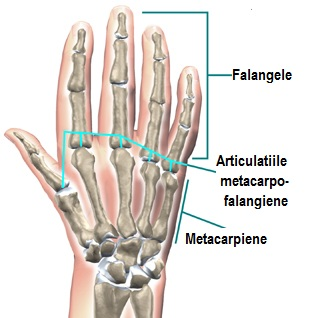 vătămarea capsulei articulare a degetului)