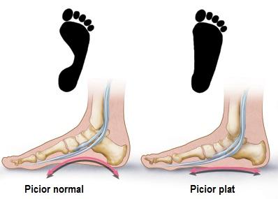 articulația umflată și dureroasă pe picior)