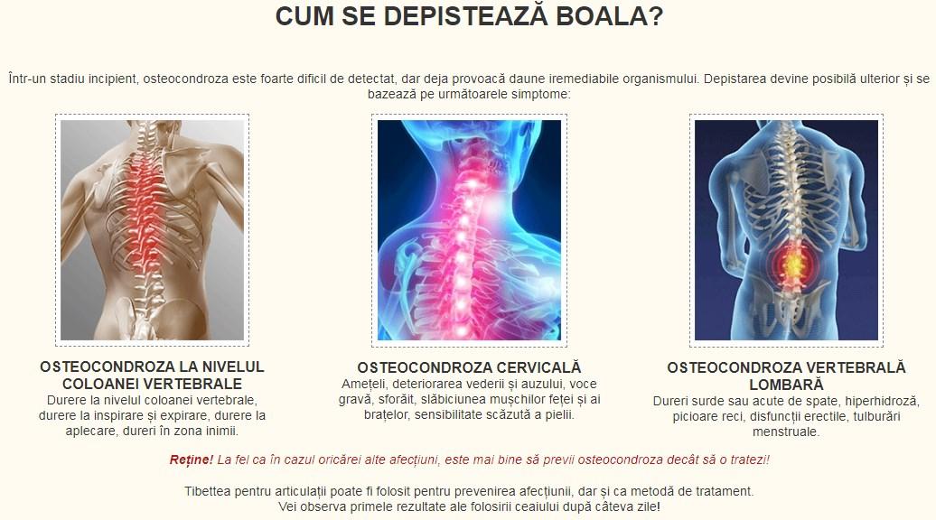 boli ale coloanei cervicale și ale vederii