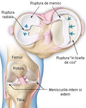 leziune de menisc în articulația genunchiului)