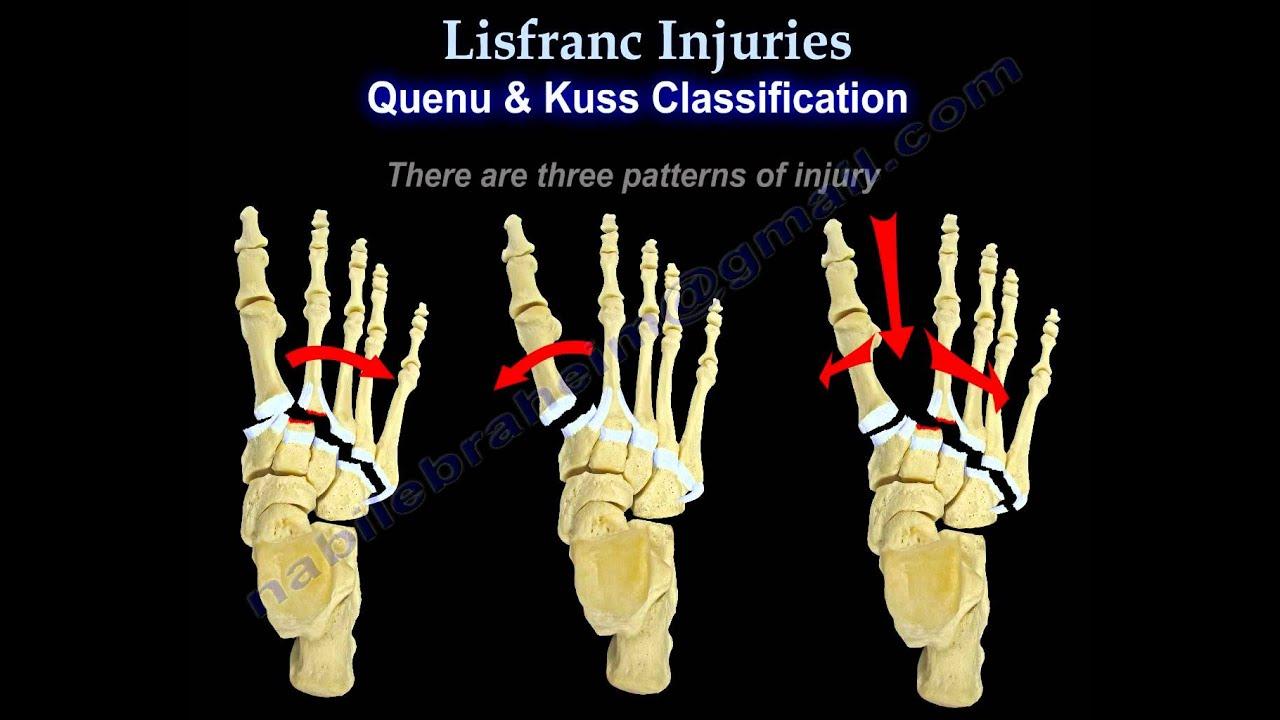 Tratamentul de luxație articulară Lysfranc criză articulară fără durere la un adolescent