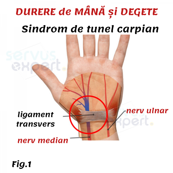 artroza articulației cotului cum să ușurezi durerea tratamentul artrozei genunchiului 3 4 grade