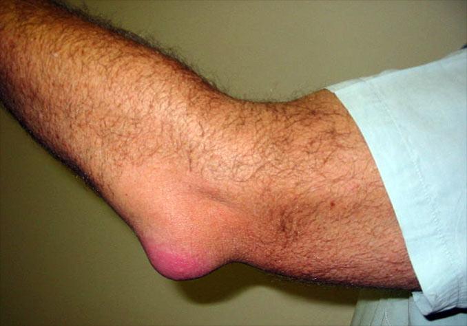 boala cu bursita articulației cotului)