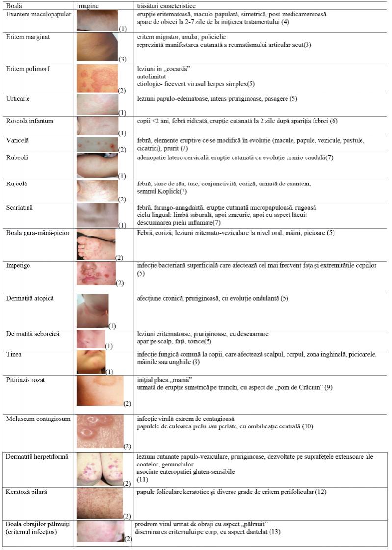 Erupţia cutanată - semne și simptome Erupții cutanate dureri articulare