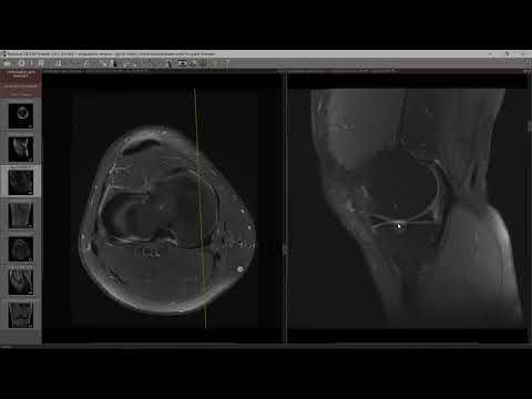 colofonie articulară durere acută în zona șoldului