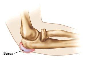 bursita istoricului medical al articulației cotului